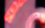 Scherzinger #1